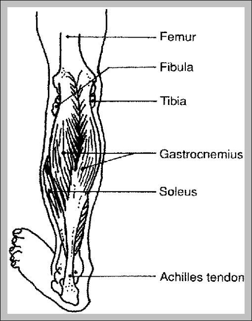 Medial head of the gastrocnemius | Graph Diagram