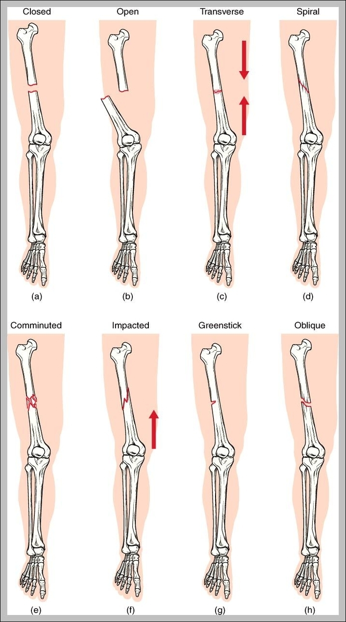 Types Of Fracture Graph Diagram