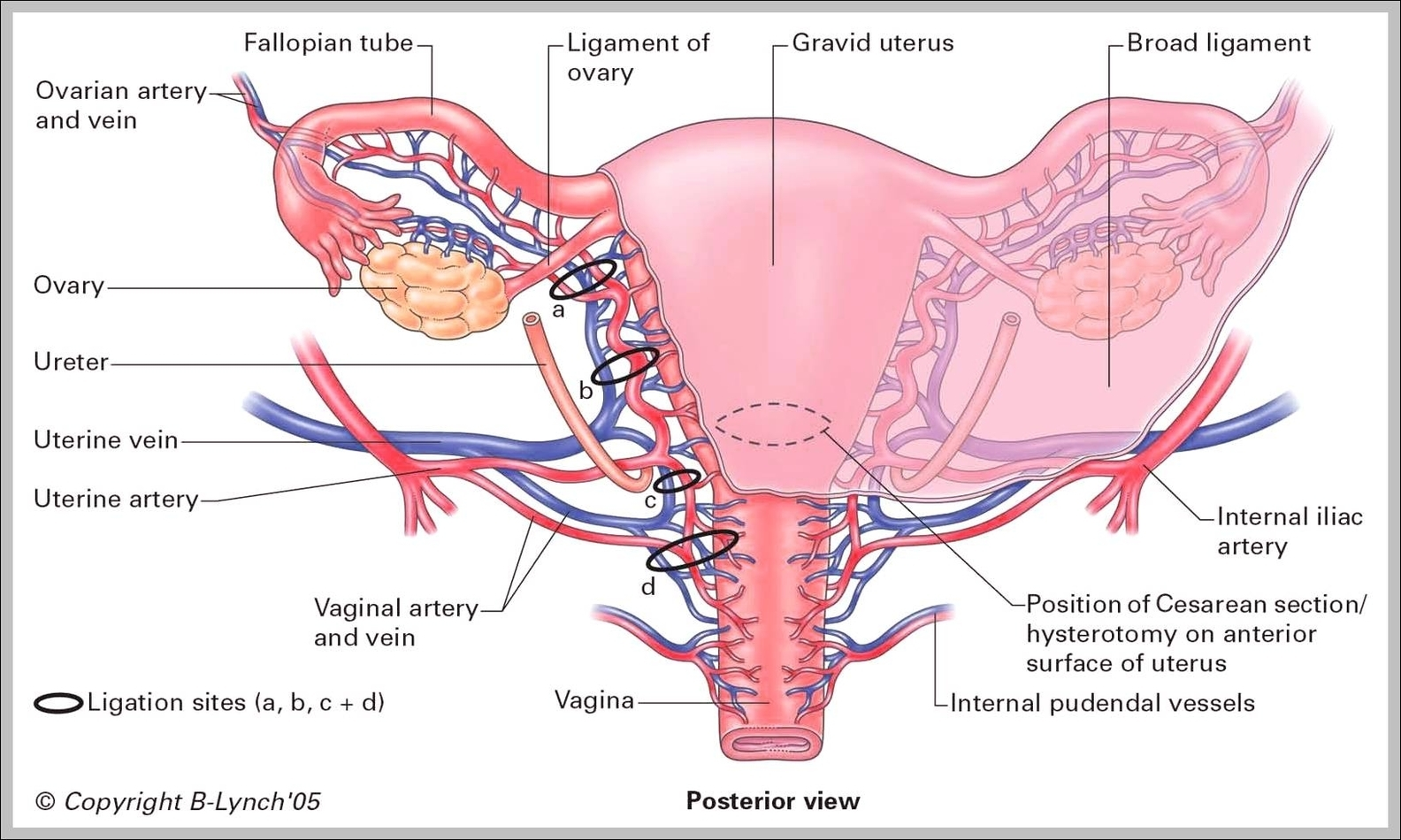Uterine Ligaments Anatomy Images - human body anatomy